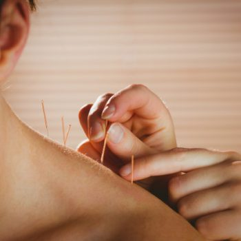 young-woman-getting-acupuncture-treatment_13339-153094